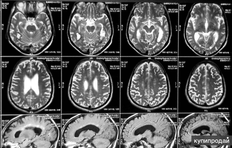 сканирование рентген снимков , пленок МРТ