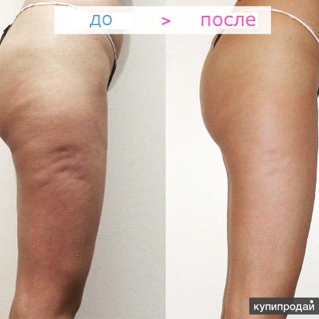 Антицеллюлитный массаж эффективность для похудения