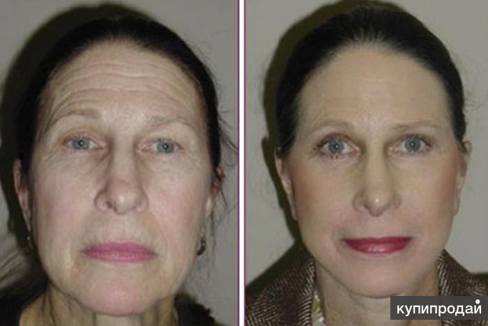 узнаете тиогамма в косметологии фото до и после качестве прибора