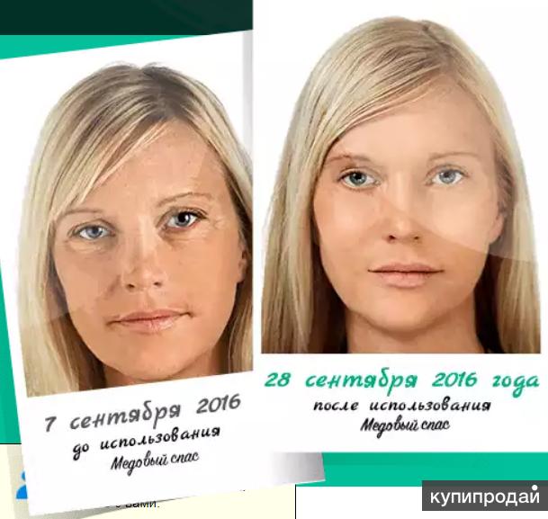 """""""Медовый Спас"""" """"сотрут"""" с вашего лица 20 лет!"""
